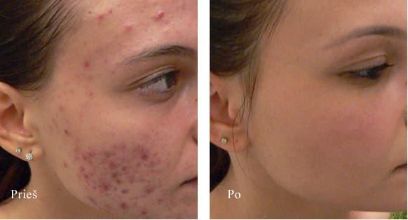 acne spuogu gydymas 1